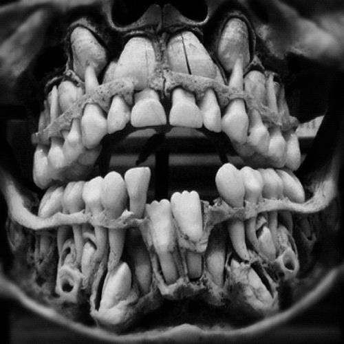 Newborn Baby Baby Teeth Xray Do Babies Already Have Adult Teeth Waiting Quora