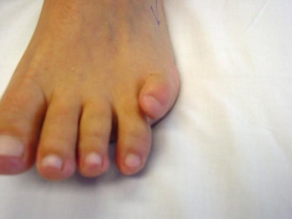 Why Do Some People Have Pinky Toes That Dont Touch The