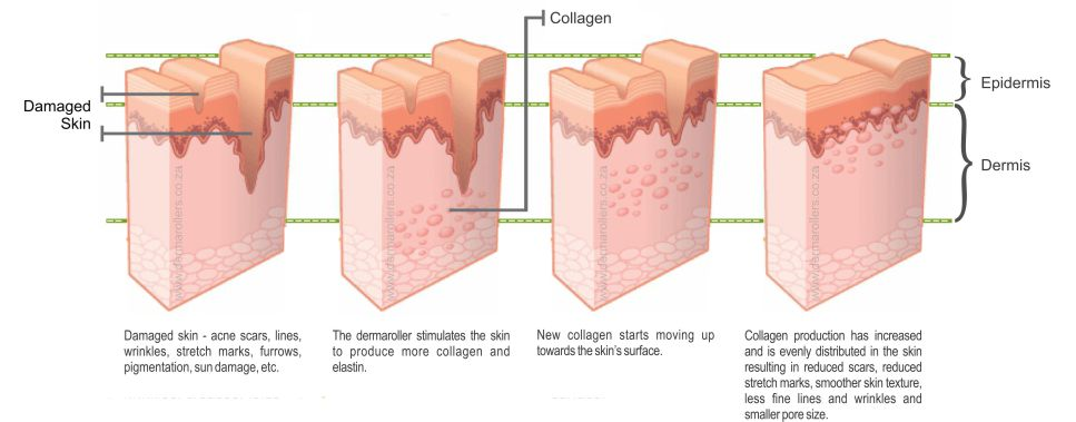 derma_roller_treatment