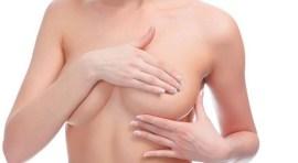Exámenes gratis de seno en Queens durante el Mes de la Mujer