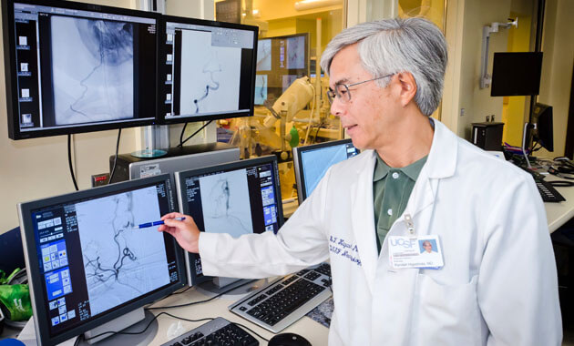 Neurointerventional Radiology UCSF Radiology