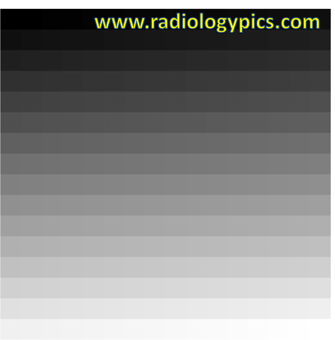 Shads Of Gray 256 Shades Of Gray Explanation Of Grayscale Radiologypics Com