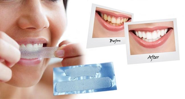 Отбеливающее средство для зубов купить украина
