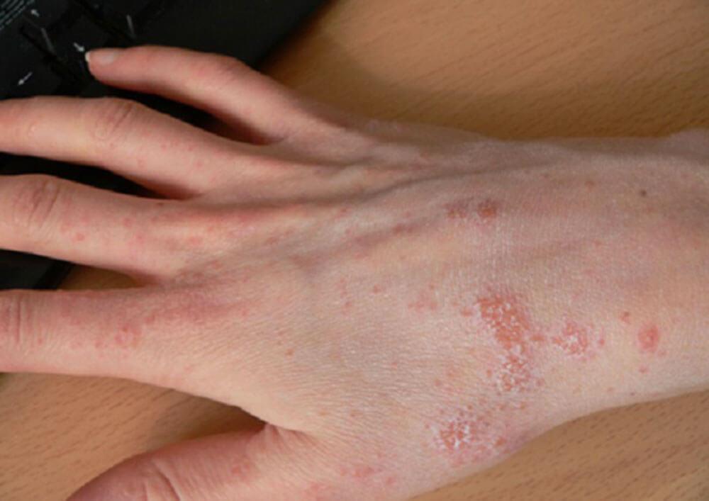 избавиться от паразитов в организме лекарствами