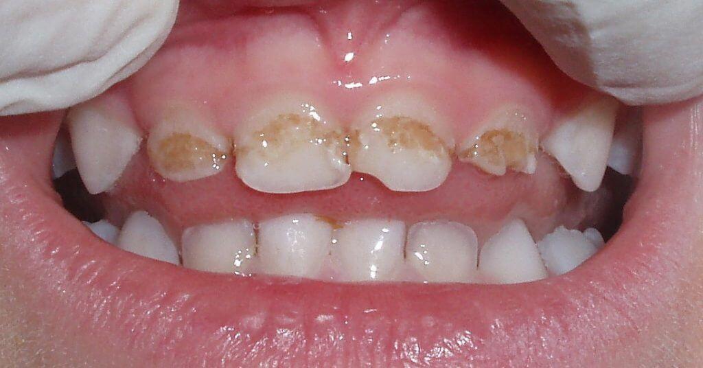 Отбелить зубы у стоматолога стоимость