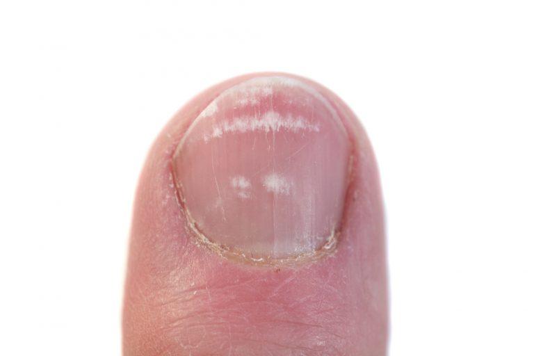 Какой бывает грибок ногтей