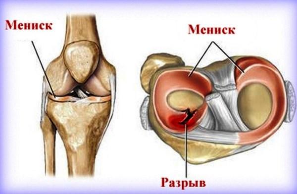 мениски коленного сустава порваны