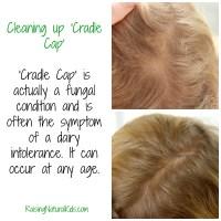 Cleaning up 'Cradle Cap'