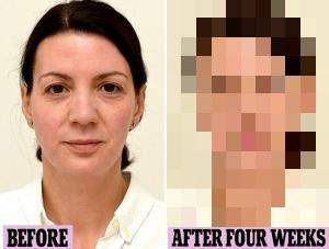 毎日水を3リットル飲み続けた女性の衝撃的結果をご覧くださいwwwwwwwwww(画像あり)