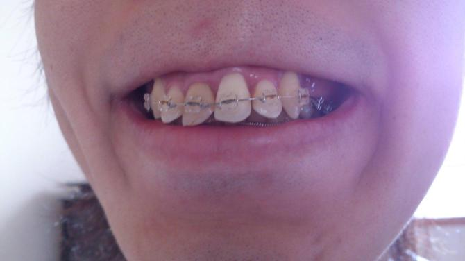 歯列矯正12