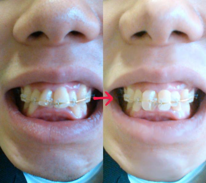 歯列矯正89