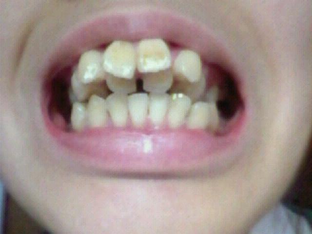 歯並び15