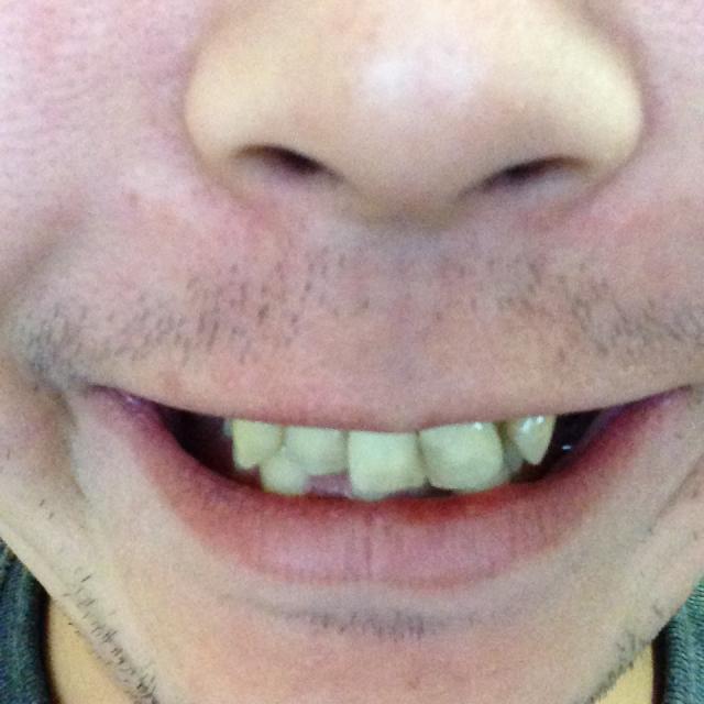 歯並び28