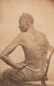 A Slave's Back