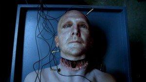 Image result for head transplant