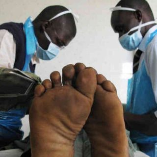 Nurses in a Kisumu health facility perform voluntary medical male circumcision on a client.Picture:courtesy