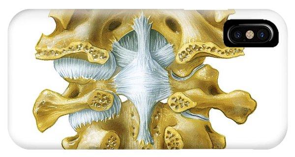 Atlanto-occipital Joint, Artwork Photograph by Bo Veisland