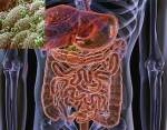 gut bug link to colon cancer