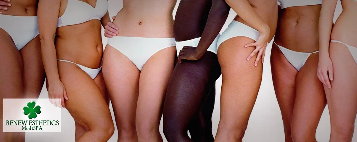 Does-ethnicity-affect-cellulite-2