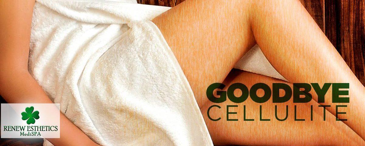 how-to-say-goodbye-to-cellulite-with-velashape-iii-ok