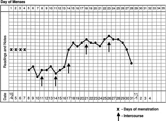 Evaluation and Management of the Infertile Couple GLOWM