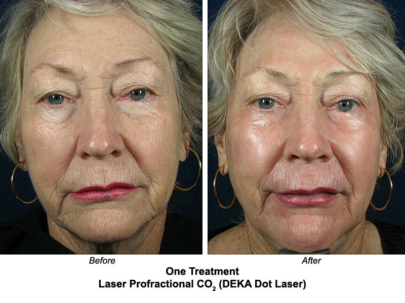 Acne Rosacea Eyelid Surgery Before And After | Laser Resurfacing Before