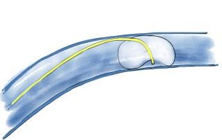 Overwedged-Pulmonary-Artery-Catheter