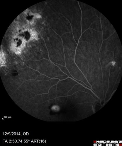 Ocular Histoplasmosis with New CNVM in right and better eye treated