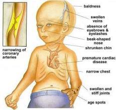 progeria-1