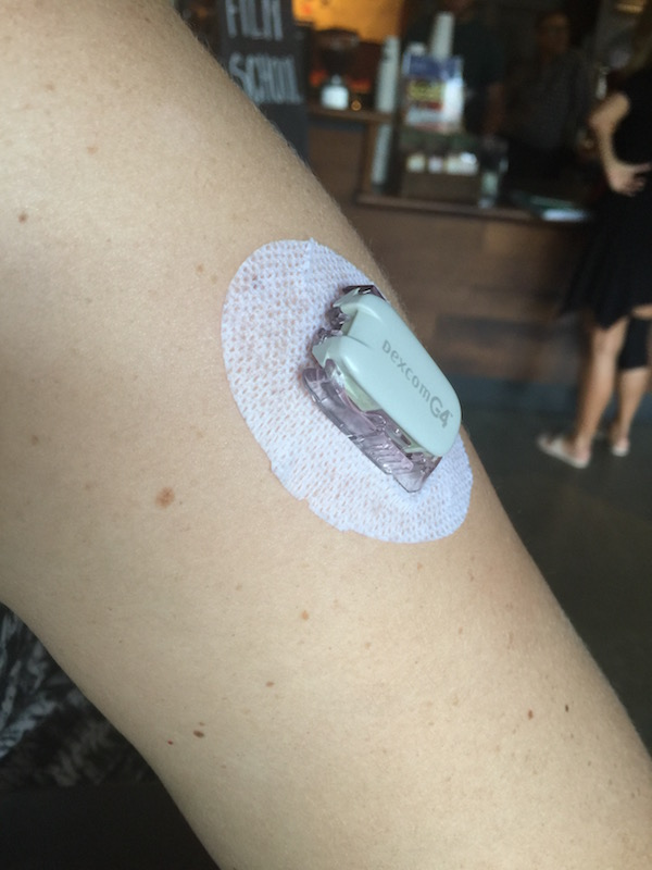 """This is a blood-glucose """"thing."""" It is stuck directly into your arm and uses Bluetooth LE to communicate your blood sugar levels to nearby monitoring equipment."""