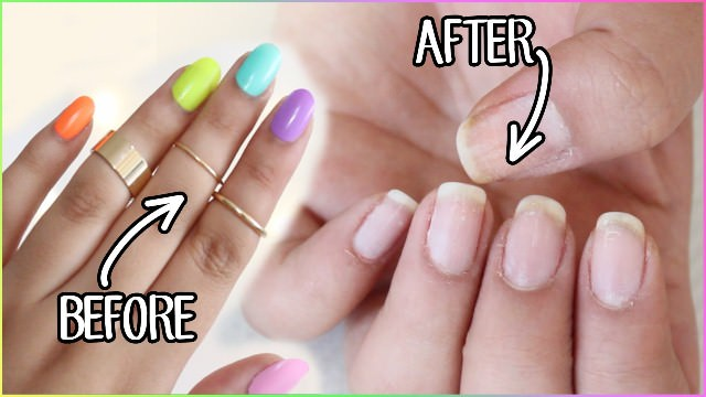 How To Remove Gel Nails