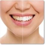 有吉ゼミの歯が白くなる方法とは?歯磨きやホワイトニングのまとめ!