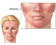 Acne Treatment Tips For Sensitive Skin Types Verywell