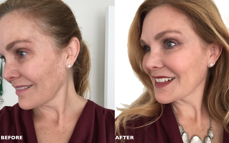 It cosmetics dramatic before and after photos | roundandroundrosie.com