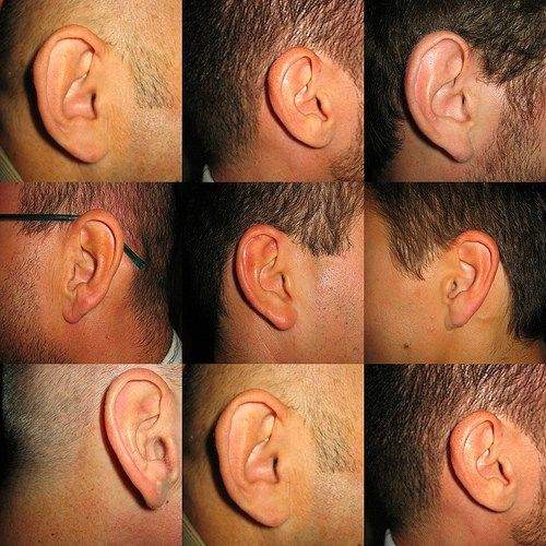 Is It Possible For Tinnitus To Develop Into A More Dangerous Disease 1