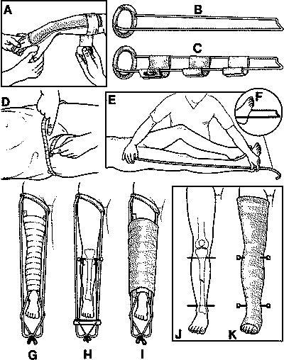 splint diagram annuity