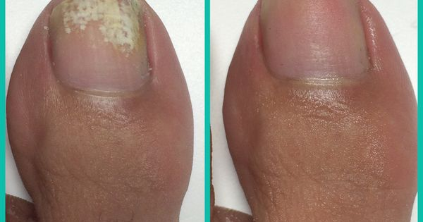 How To Remove White Marks From Your Toes