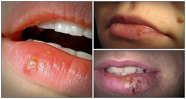 Cold Sores, Herpes Question.? 1