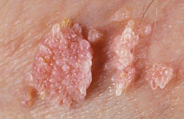 Genital Warts & Genital Herpes? 3
