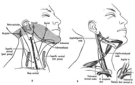 lymphedema stroke diagram