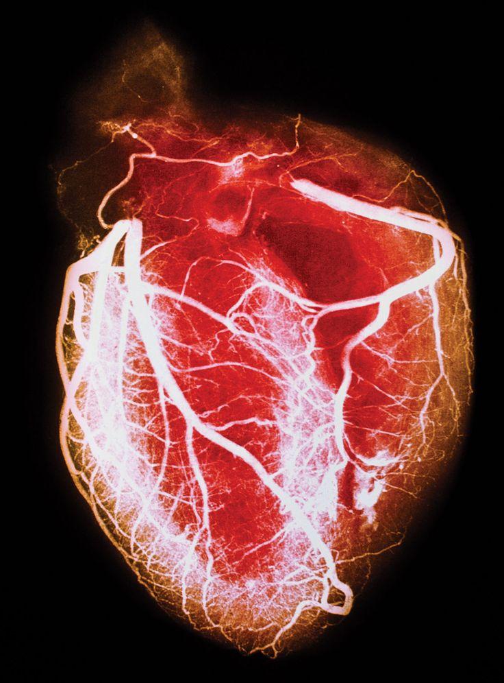 heart disease essay