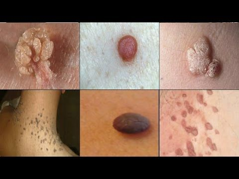25 Best Ideas About Remove Warts On Pinterest How To
