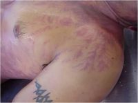 17 best Lightning Strike Scars images on Pinterest