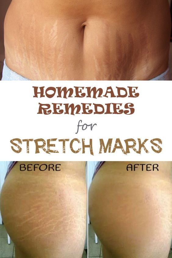 stretch marks homemade remedies