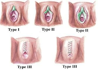 female genital circumcision in africa