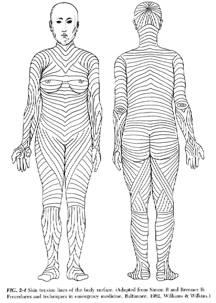skin tension lines diagram arm