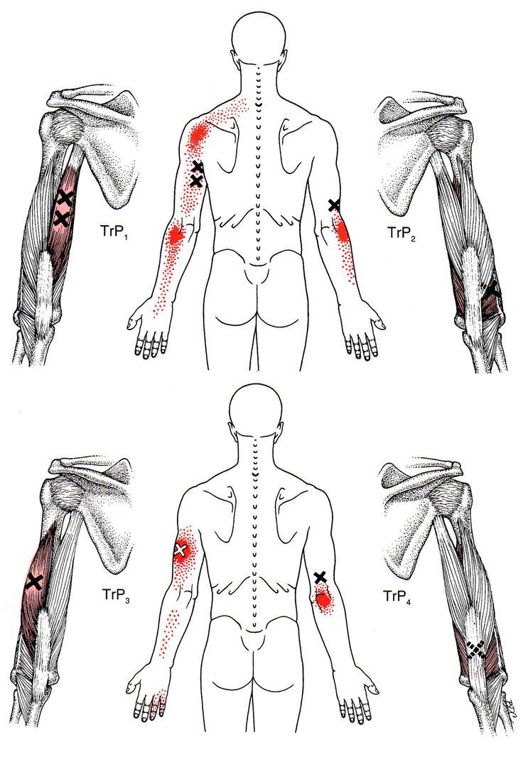 biceps and triceps diagram