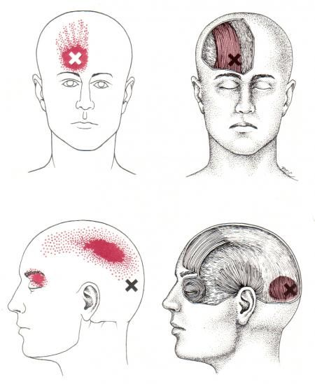 headache location diagram