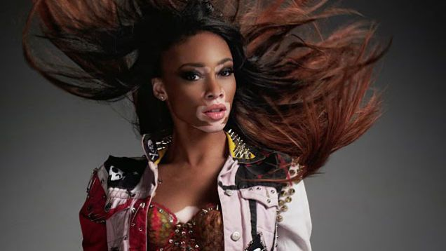 Image result for vitiligo model hd wallpapers