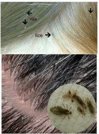 Hair Lice Treatment  Health and Beauty Pages : Tea tree ...